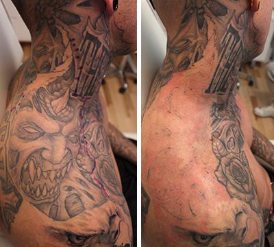 fjernelse af tatovering københavn